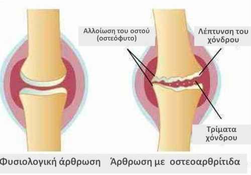 Αρθρίτιδα και βελτίωση συμπτωμάτων λόγω ασκήσεων χωρίς πόνο.